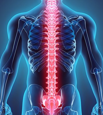 spinal stroke
