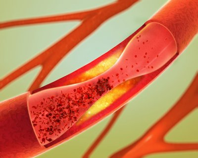 Iliac artery aneurysm