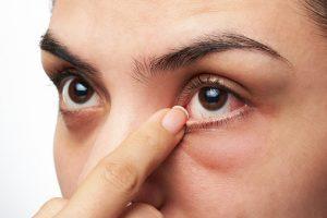 dry-macular-degeneration