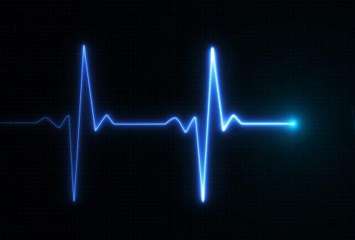 ecoptic heartbeat