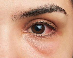 Glaucoma linked with regular eye movements