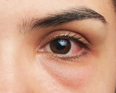 Glaucoma linked with regular eye movements