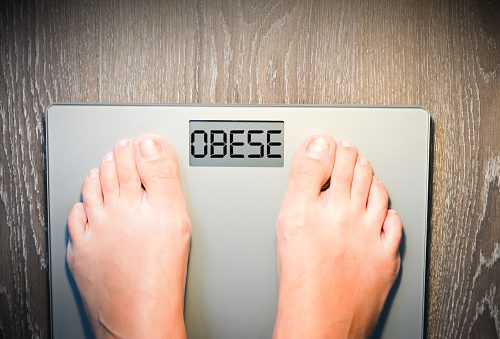Research finds severe obesity linked to gene mutation
