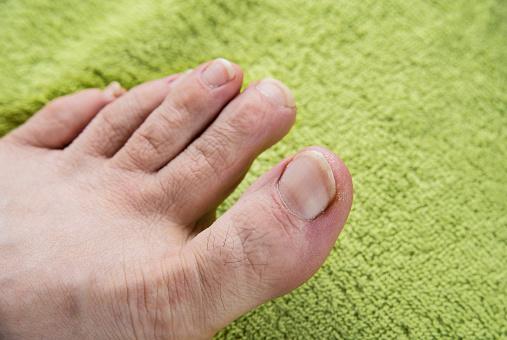 toenail
