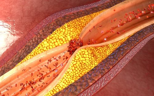 artery disease