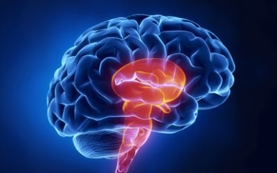 Brain Stem Stroke