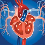 Left atrial enlargement: Causes
