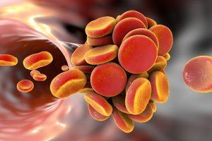 Thrombosis vs. Embolism
