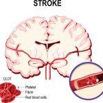 ischemic vs hemorrhagic stroke