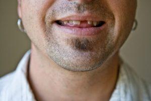 tooth loss heart disease