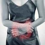 Ulcerative Proctitis: Causes