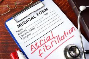 Premature Atrial Contractions Atrial Fibrillation