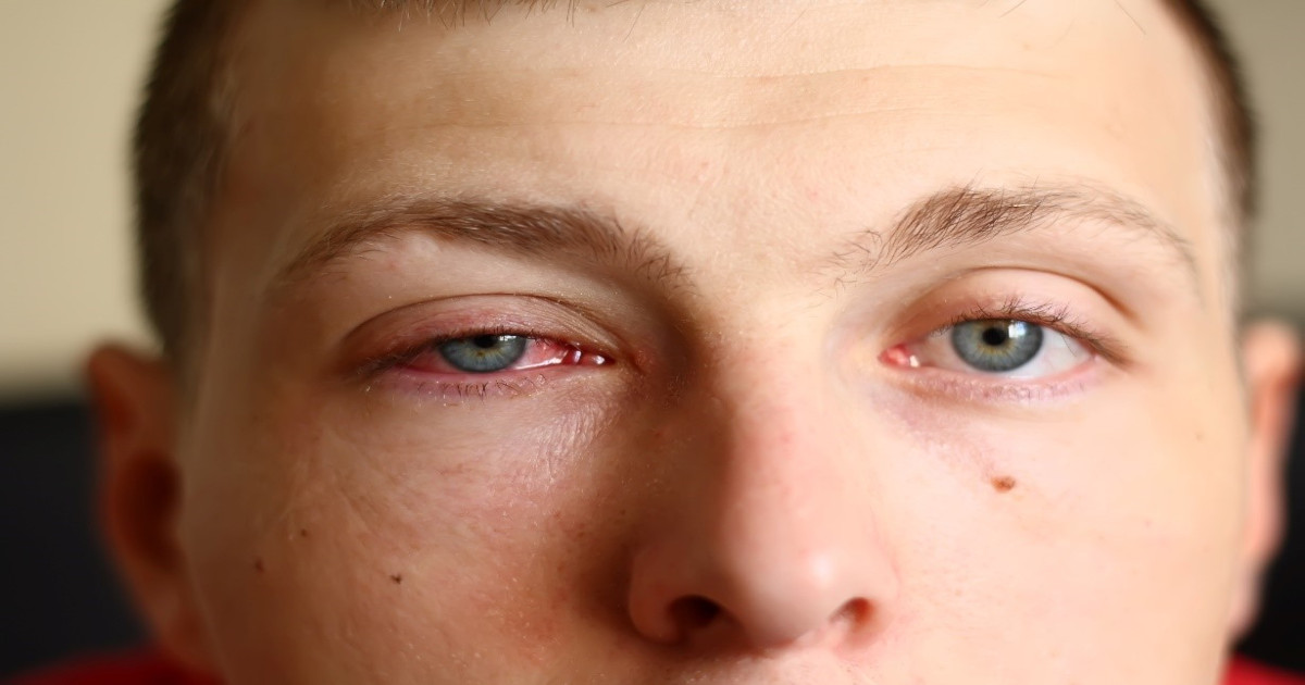 How to remedy pepper in the eye situation