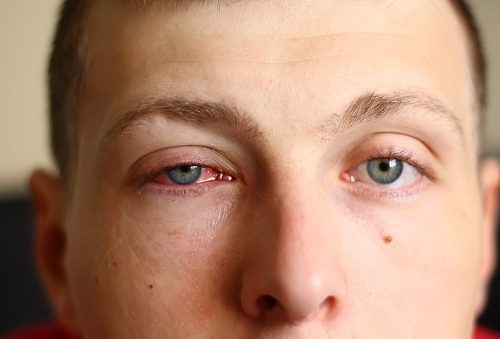 home remedies for eye infection