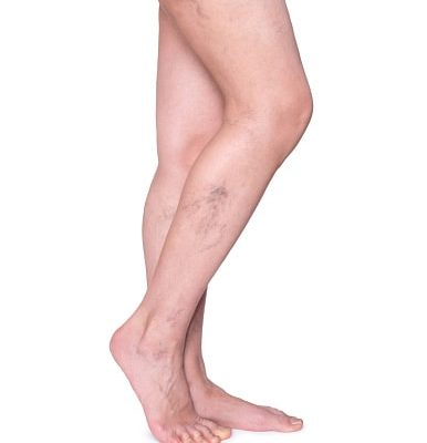 Poor Circulation in Legs: Causes, Symptoms, and Treatment