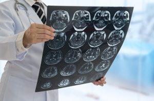 stroke vs seizure