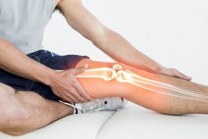 IBS C and hypermobility