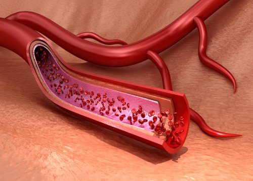 How to Improve the Health of Your Blood Vessels