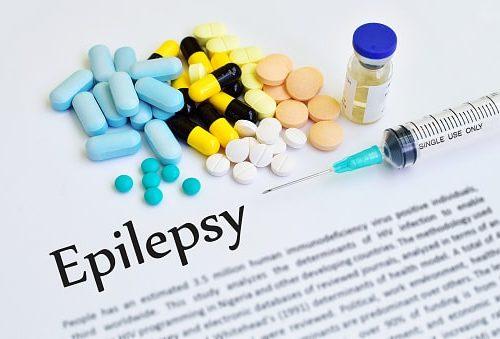 post stroke epilepsy