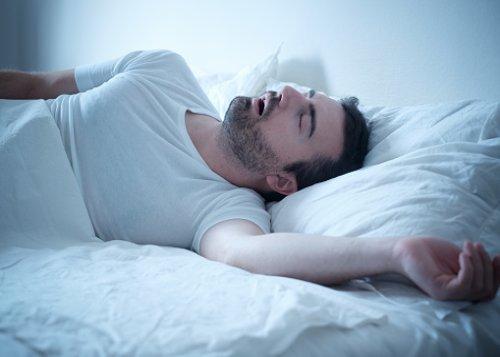 sleep apnea atrial fibrillation