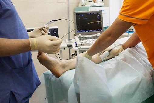 varicose veins glue treatment