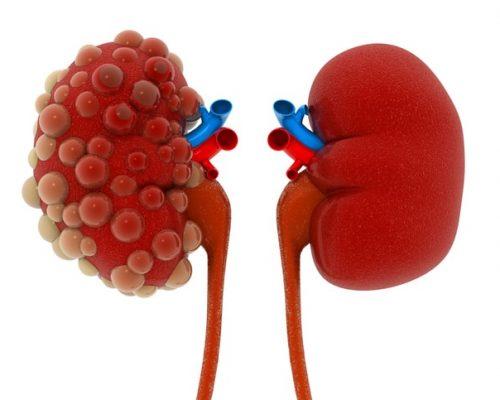 End-stage renal disease (ESRD)