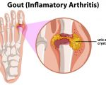 Gout doubles the risk of atrial