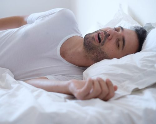 Obstructive sleep apnea patients