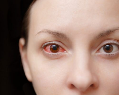 Ocular Rosacea Causes Symptoms Home Remedies And Lifestyle Tips