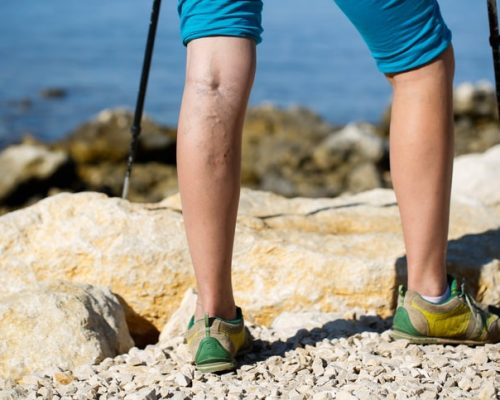 varicose veins exercise