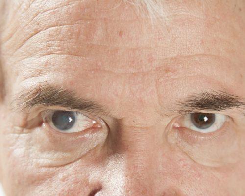 cataracts and bones