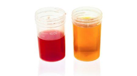 blood in urine prostate cancer