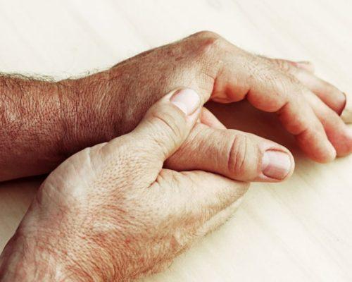 gout dementia