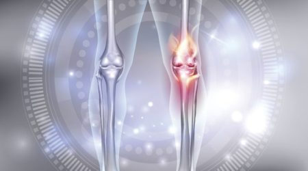 knee osteoarthritis massage
