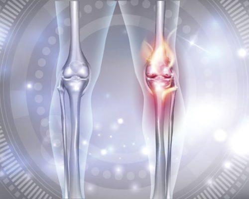 knee osteoarthritis massage