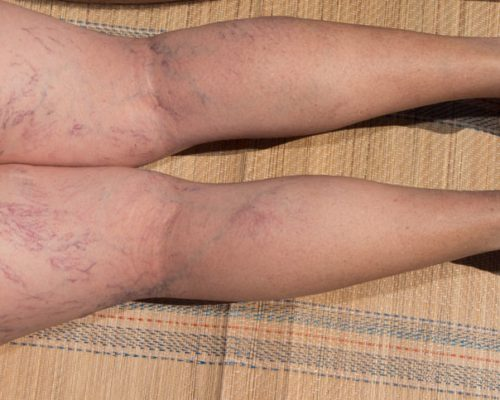 varicose vein complications
