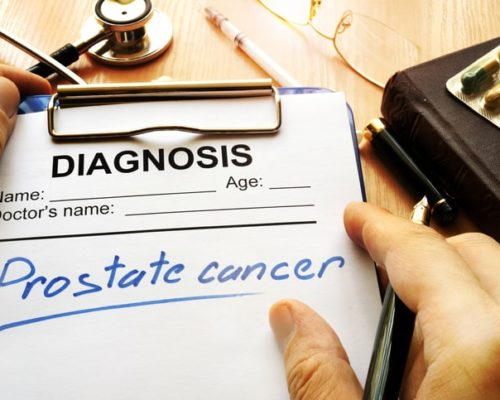 prostate cancer and IBD