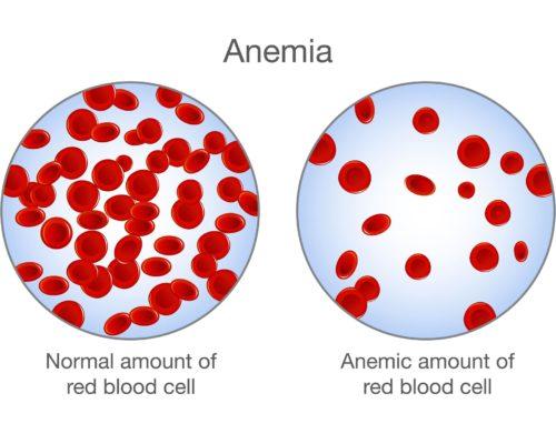 tinnitus anemia