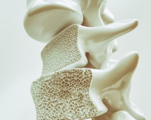 New breakthrough in osteoporosis