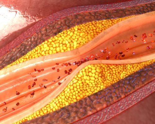 atherosclerosis and sleep