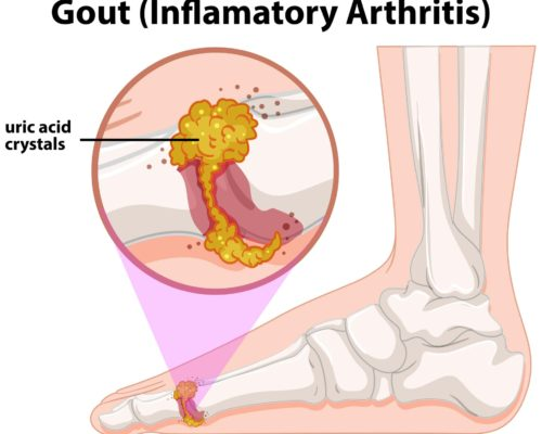 gout, diabetes and stroke
