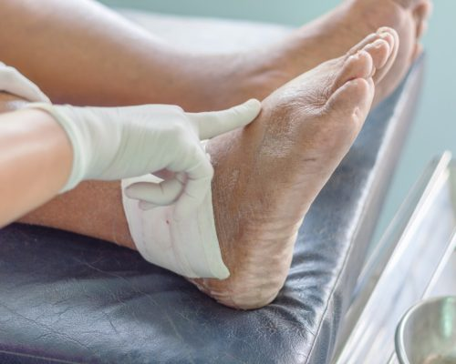 gout chronic pain
