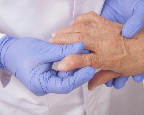 rheumatoid arthritis, frailty, osteoporotic fracture