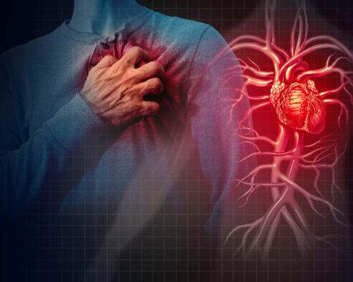 Heart attack concept and human cardiovascular pain as an anatomy medical disease concept with a person suffering from a cardiac illness as a painful coronary event with 3D illustration style elements.