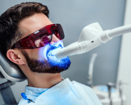 Close up view of man undergoing laser tooth whitening treatment to remove stains and discoloration.