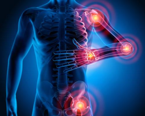 3D Rendering - Starke Schmerzen in den Gelenken - Rheuma und Arthrose