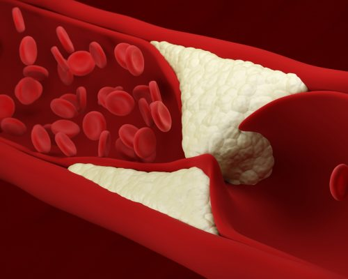 Atherosclerosis. Red blood cells. Artery. Build up of plaque. Loss of elasticity of the walls of arteries. Thickening and hardening. Blood flow. 3d illustration.