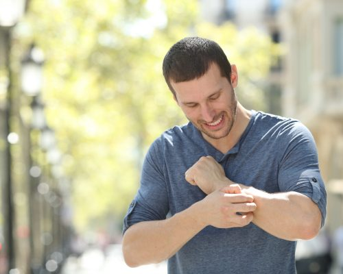 Adult man scratching itchy arm in the street
