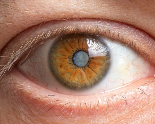 Macro photo of an eye for an eye microsurgery clinic, diseases in ophthalmology
