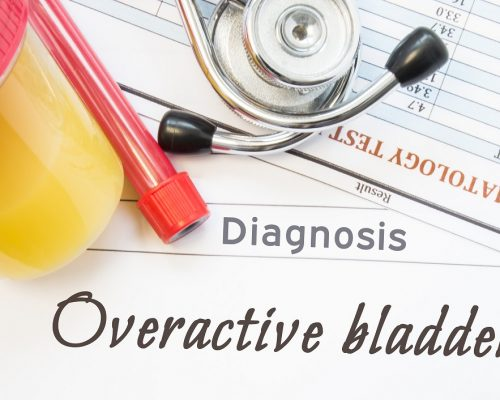 Overactive Bladder diagnosis. Container with urine sample, tube with blood, stethoscope and blood test results hematology on white note inscribed with diagnosis of urologic disease Overactive Bladder
